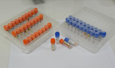 Carbamated pesticides residues ELISA KIT